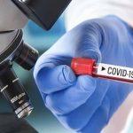 Ε.Ε.: Αμεσα βραχυπρόθεσμα μέτρα, για την πιθανή έξαρση του COVID19